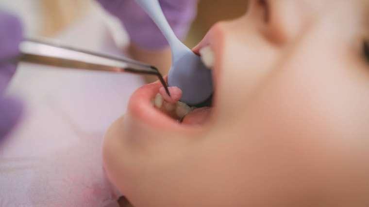 Czy sztuczne słodziki są szkodliwe dla zębów?